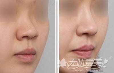 玻尿酸注射隆鼻案例