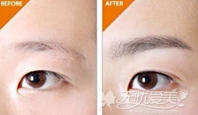 半永久纹眉+美瞳线案例