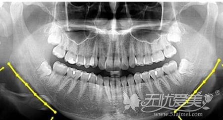 下颌角整形前X光检查
