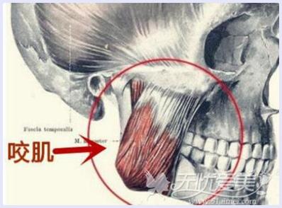 咬肌在下颌角的位置