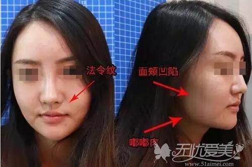 面部线雕提升前
