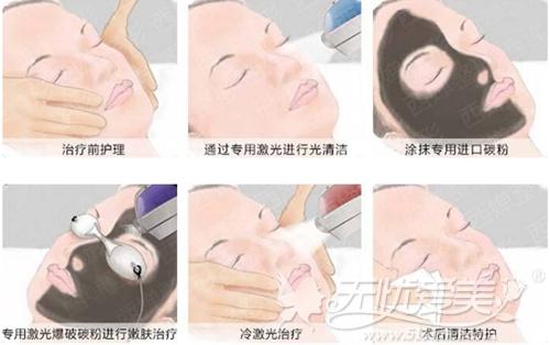 黑脸娃娃美肤治疗过程