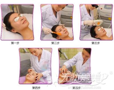 光子嫩肤治疗过程