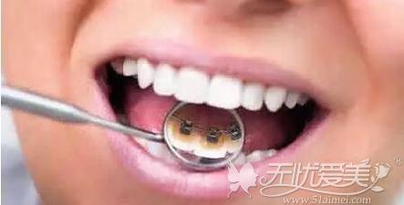 舌侧矫正器