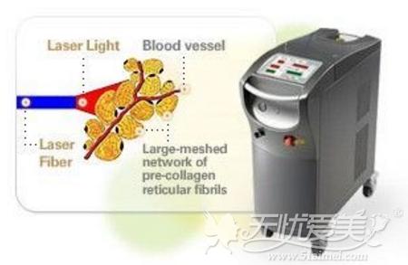ACCU激光溶脂仪器
