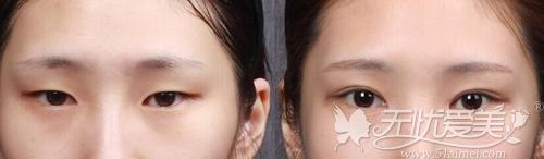 双眼皮+开眼角案例