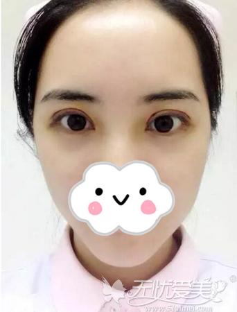 双眼皮术后7天拆线