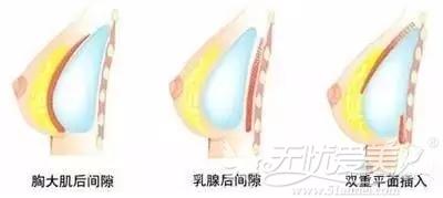 假体隆胸手术的三个假体植入层次