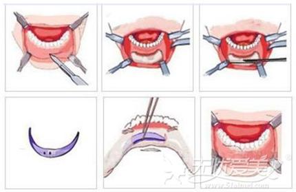假体隆下巴的切口位置