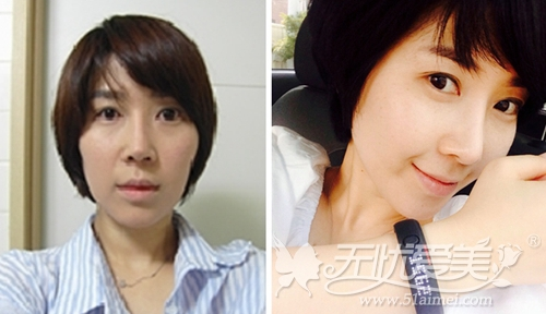 我在韩国灰姑娘整形医院做自体脂肪填充+鼻综合术前术后对比