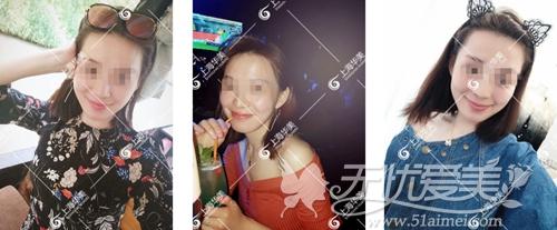 在上海华美做下颌角手术后2个月
