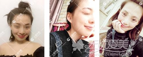 在上海华美做下颌角手术后1个月