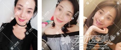 在上海华美做下颌角手术后6个月