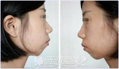 正常的下巴位置和曲线