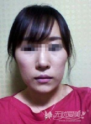 我在长沙爱思特做自体脂肪填充+改脸型术前