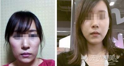 我在长沙爱思特做自体脂肪填充+改脸型前后对比