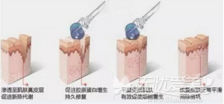 微针水光注射原理
