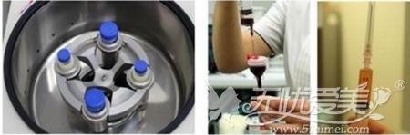干细胞焕肤SF套餐第四步PRP注射治疗