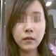 面部脂肪填充改脸型