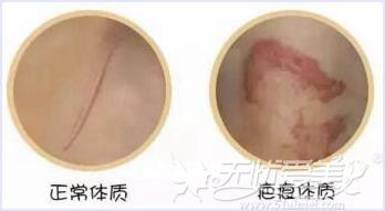 正常体质和疤痕体质