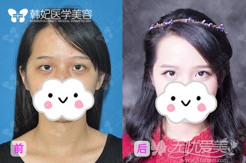 广州韩妃切开双眼皮前后对比