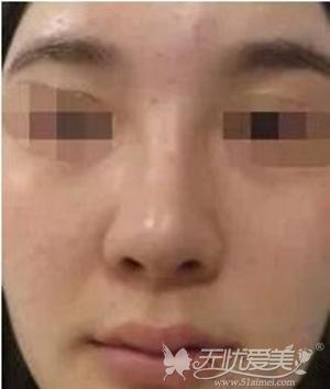 来北京亚馨美莱坞做隆鼻修复前照片