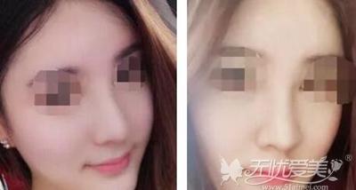 来北京亚馨美莱坞做隆鼻修复术后第10天
