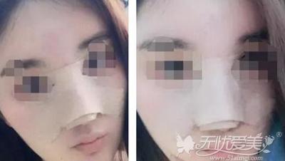 来北京亚馨美莱坞做隆鼻修复术后第一天