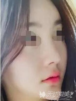 来北京亚馨美莱坞做隆鼻修复术后第14天
