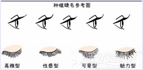 睫毛种植参考类型