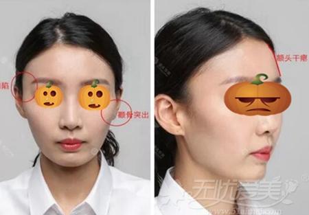 面部凹陷需要脂肪填充