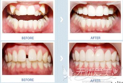 牙齿贴片案例