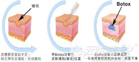 肉毒素可以去除动态皱纹