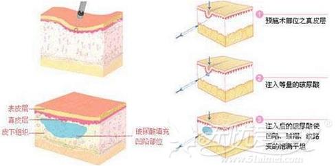 玻尿酸可以去除静态皱纹