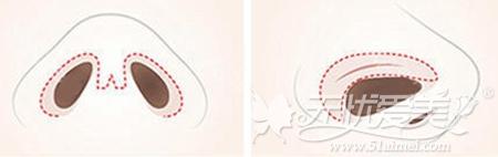 韩国TV-line颜面轮廓手术T线条—鼻中隔手术