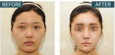 韩国TV-line颜面轮廓手术案例