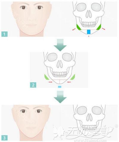 韩国TV-line颜面轮廓手术v线条—下颌角+前下巴整形