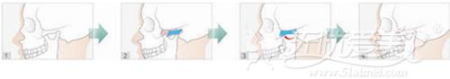 韩国TV-line颜面轮廓手术L面部截骨