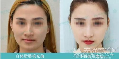 自体脂肪丰脸前后对比