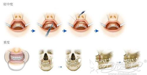 中度和重度露龈笑需要通过手术矫正