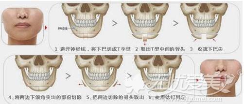 面部整形术后饮食