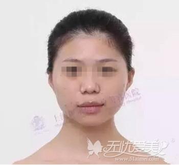 在上海伊莱美做面部轮廓手术前