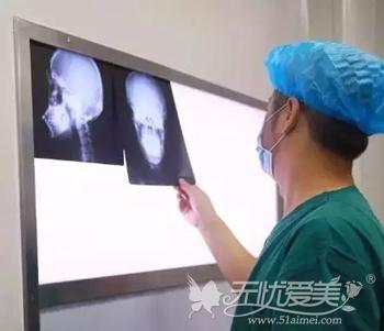 在上海伊莱美做面部轮廓手术方案设计
