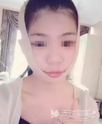 在上海伊莱美做面部轮廓手术后二周