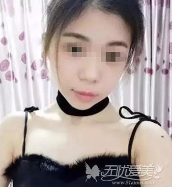在上海伊莱美做面部轮廓手术后1个月