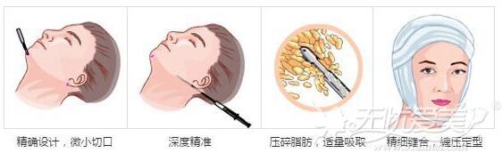 面部吸脂手术原理