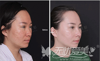 注射隆鼻失败修复案例