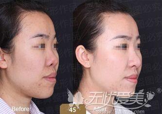 假体隆鼻失败修复案例