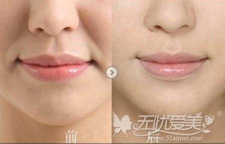 面部激光除皱案例