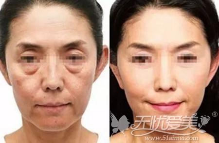 面部线雕提升案例